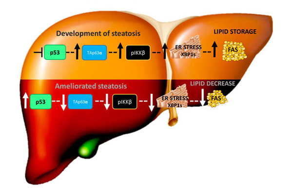 Pathway proposed to modulate lipid metabolism in liver